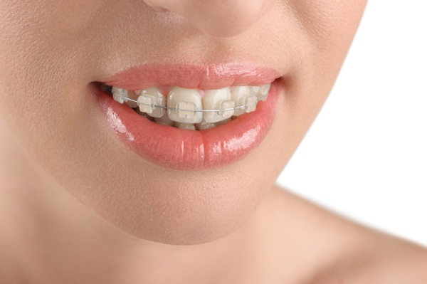 Can Adults Have Orthodontic Treatments?