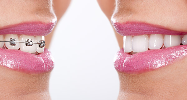 How to Choose the Right Orthodontist in Stockton