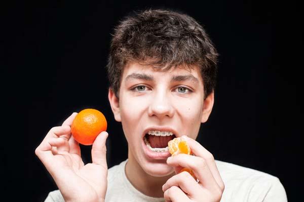 4 Popular Orthodontist Treatments